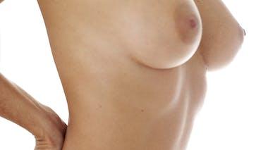 Le cancer du sein, premier cancer féminin