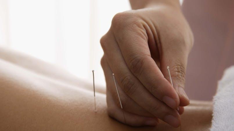 L'acupuncture, pour se rééquilibrer en profondeur