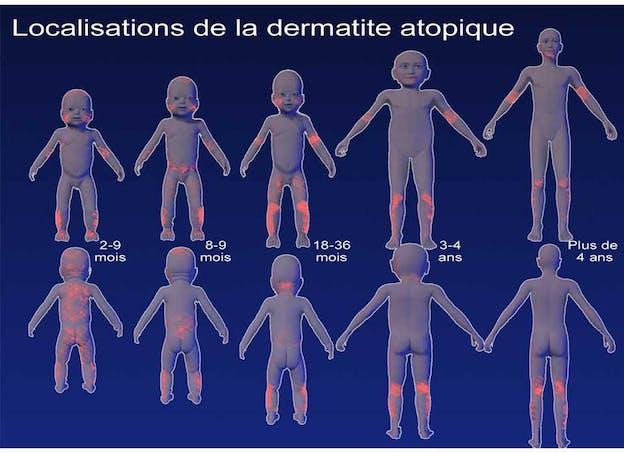 Comment évolue la dermatite atopique chez l'enfant ?
