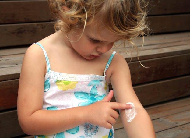 Traiter l'eczéma : les dermocorticoïdes en première intention