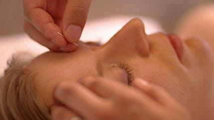 L'acupuncture, elle peut aussi être anti-âge