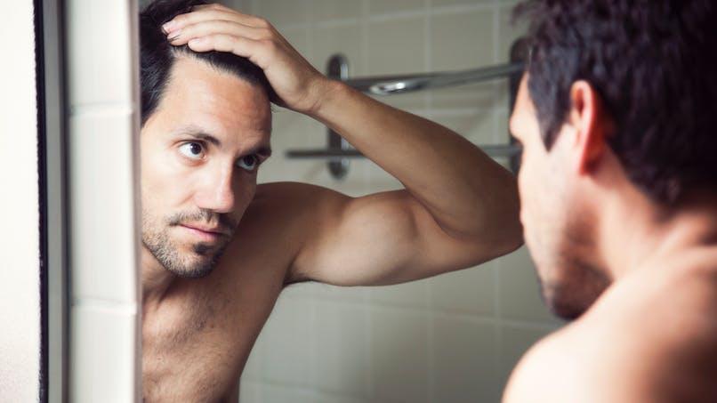 Calvitie: les microgreffes de cheveux