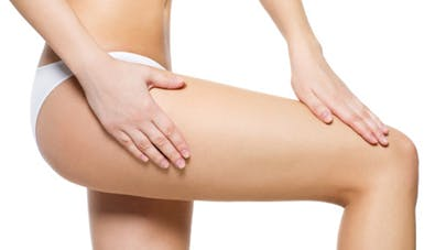 Quelle alimentation contre la cellulite ?