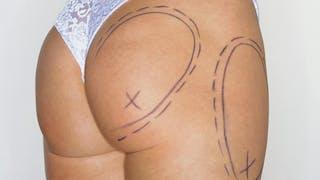 Cellulite: pourquoi l'interdiction de la lipolyse?