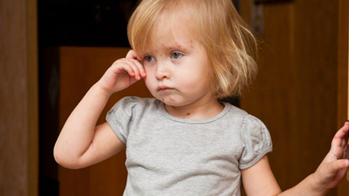 Migraine chez l'enfant : un phénomène souvent associé à des troubles du sommeil