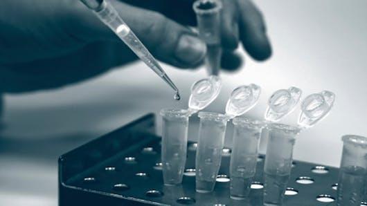 Vers un dépistage généralisé du sida?