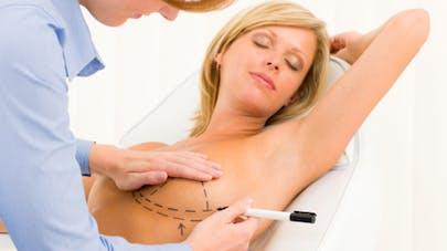 Opération des mamelons rentrés: comment ça se passe?