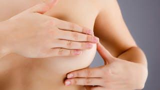 Cancer du sein: le prélèvement des ganglions