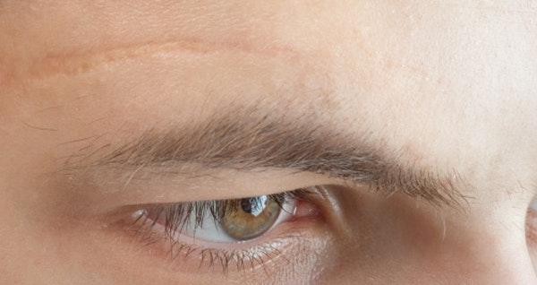 cicatrice visage que faire