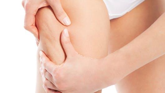 Cellulite: 15 jours chrono pour vous affiner du bas