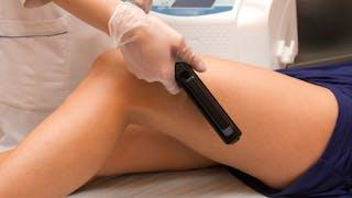 Laser endoveineux: pour éliminer les varices