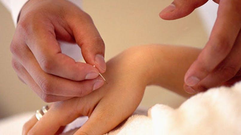 Augmenter ses chances de grossesse avec l'acupuncture