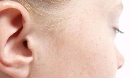 Surdité chez l'enfant: quand s'inquiéter?