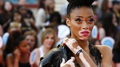 Atteinte de vitiligo, Winnie Harlow est aussi mannequin