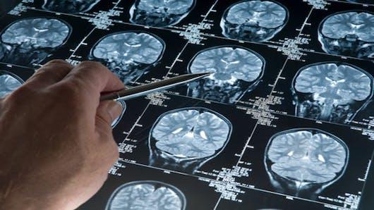 Alzheimer: des médicaments pour ralentir la maladie