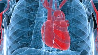 Cœur artificiel: une nouvelle prothèse à l'essai
