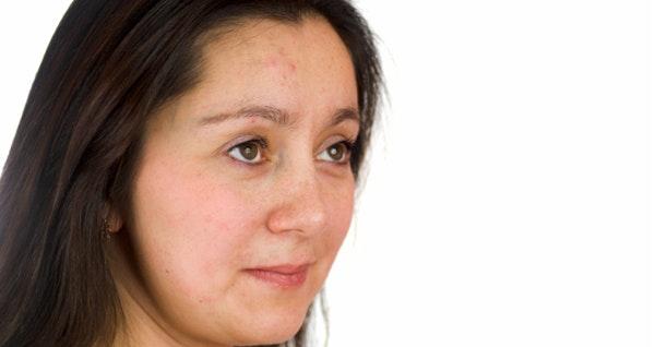 acne adulte femme traitement naturel