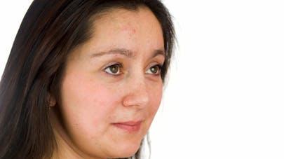 6df671009290 L acné chez l adulte, un problème fréquent   Santé Magazine