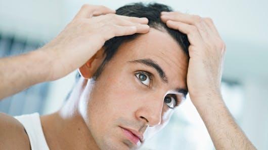 Les nouvelles techniques de greffes de cheveux
