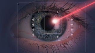 Chirurgie des yeux: les progrès du laser