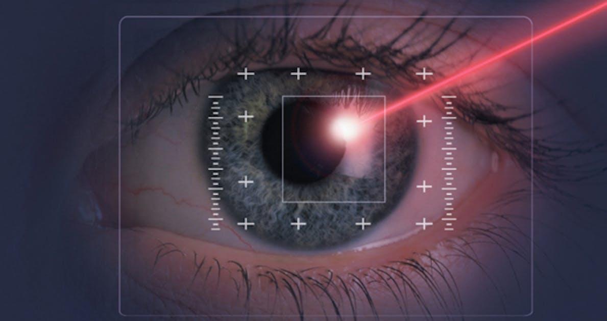opérations au laser yeux