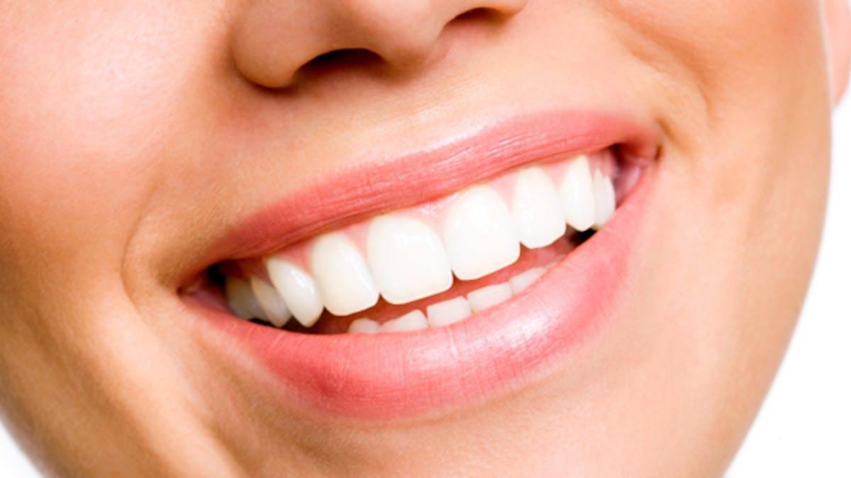 Dents abîmées: comment retrouver le sourire?
