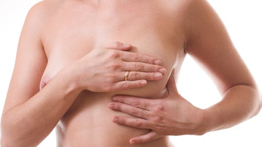 Reconstruction du sein après un cancer: quelle technique choisir?