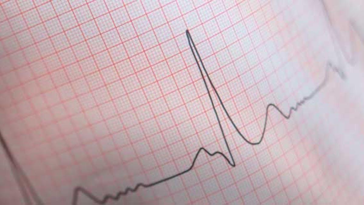 électro cardiogramme