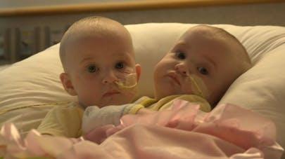 Des jumelles siamoises séparées avec succès