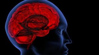 Faut-il un Plan cerveau en France?