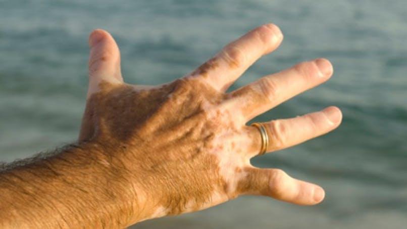 Vitiligo: bientôt un remède?