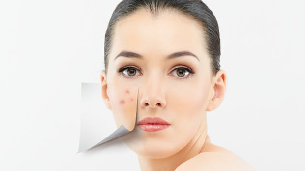 remede contre acne visage