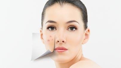 a0136325e71b Comment faire disparaître les cicatrices d acné     Santé Magazine