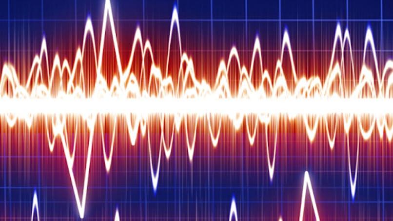 Anticiper une crise d'épilepsie grâce à un boîtier