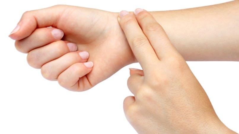 La fibrillation auriculaire augmente le risque d'AVC