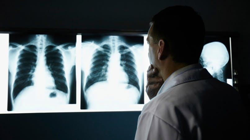 L'Ile-de-France encore touchée par la tuberculose