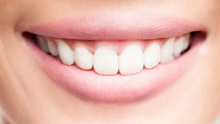 Un lien entre les troubles de la mémoire et la perte des dents?