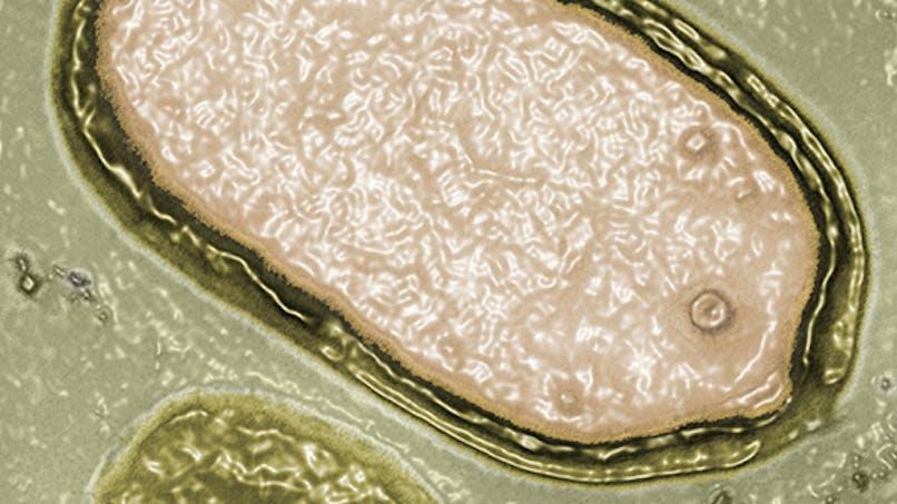 Pandoravirus: la découverte de deux virus géants bouleverse le monde scientifque