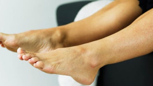 Chaleur, jambes lourdes: attention aux phlébites!