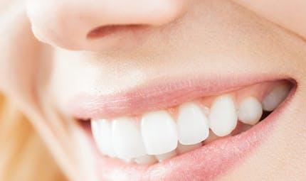 Blanchiment des dents: que dit la réglementation ?