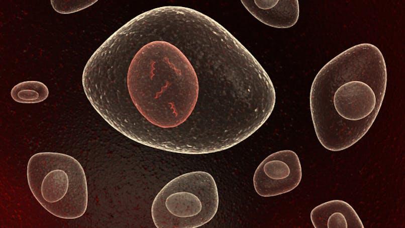 Contre le cholestérol, le recours aux molécules d'ARN