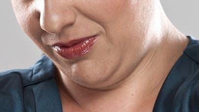 Des injections promettent de réduire le double menton