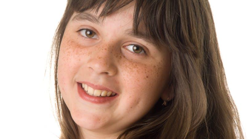 L'obésité, un facteur de risque de puberté précoce