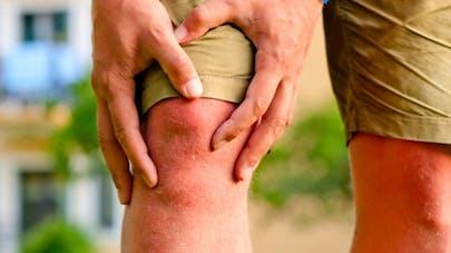 Arthrose: plusieurs anti-inflammatoires sont dans le collimateur