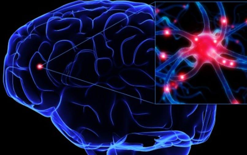 Parkinson, enfin de l'espoir avec une thérapie génique bien tolérée