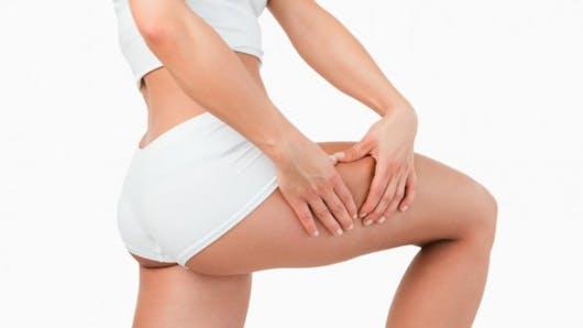 Les solutions qui marchent contre une cellulite bien installée
