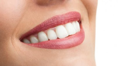 Blanchiment des dents: soyons clair!