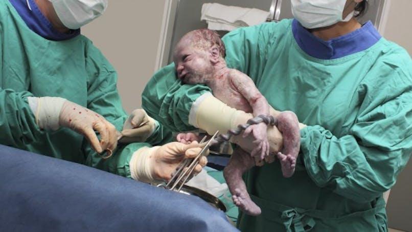 Bébé né par cesarienne: attention, plus de risque d'obésité!