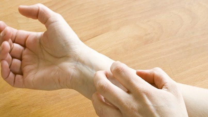 Urticaire: soulager les symptômes