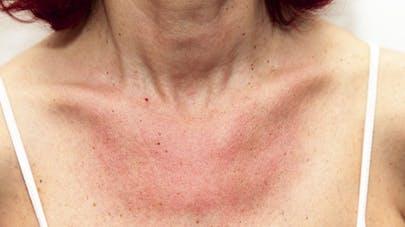 Eczéma allergique: comment l'apaiser